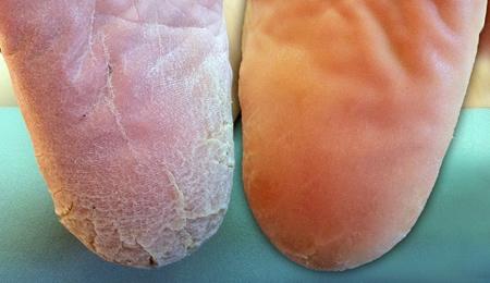 main et pied qui pelent